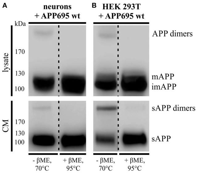 APP dimer generation and processing takes place in primary cortical neurons. (A) Murine primary cortical neurons (DIV 7) were infected with an adenoviral vector encoding human APP695 while (B) HEK 293T cells were transiently transfected with the pLHCX-APP695 wt construct. 24 h post infection or transfection, respectively, conditioned media (CM) were collected and cells were lysed in RIPA (PCN) or NP-40 (HEK) lysis buffer. Via the antibody mix 1G75A3 (1:3,000) APP was detected in lysates (upper blots) and conditioned media (lower blots). PCN show similar APP dimer expression in the lysate as HEK cells and also generate soluble APP dimers. Under reducing conditions using β-mercaptoethanol (βME) and heating at 95°C the dimer band disappeared. All lanes of lysate or conditioned medium are on the same blot but were rearranged for better presentation.
