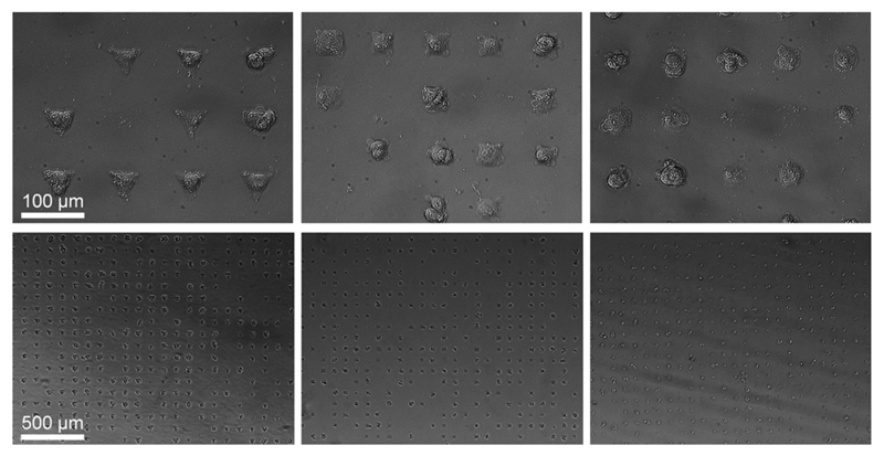 Micropatterned hMSCs after 24 hours incubation. Cells adapt to the underlining shape of the FN micro-islands resulting into triangular, square, and circular shaped cells. The islands have an identical cell adhesion area of 1350 µm 2 but a different cellular architecture.