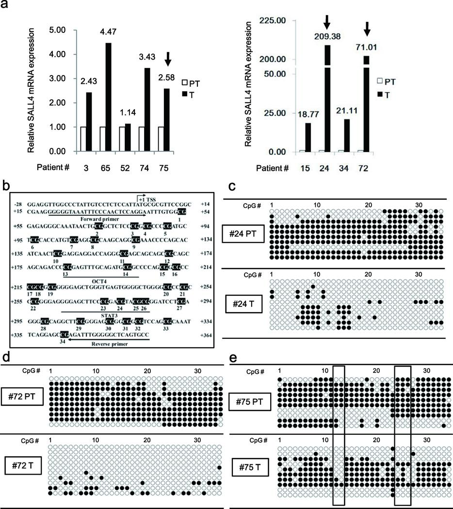 SALL4 expression is associated with DNA demethylation in a subgroup of HBV-related HCCs ( a ) PCR quantification of SALL4 mRNA in HBV-related HCCs with mild (Left panel) and extreme increase (Right panel) of SALL4 expression. PT, peritumor; T, tumor. ( b ) Mapping of CpG dinucleotides in human SALL4 gene. The transcriptional start site (TSS), numbered CpG sites, OCT4 and STAT3 binding sites, and the position of bisulfite sequencing primers are indicated. ( c–e ) Bisulfite sequencing PCR of SALL4 clones, using DNA from patients #24 ( c ), #72 ( d ), and #75 ( e ), as indicated in Fig. 1a. Open and closed circles denote unmethylated and methylated states, respectively.