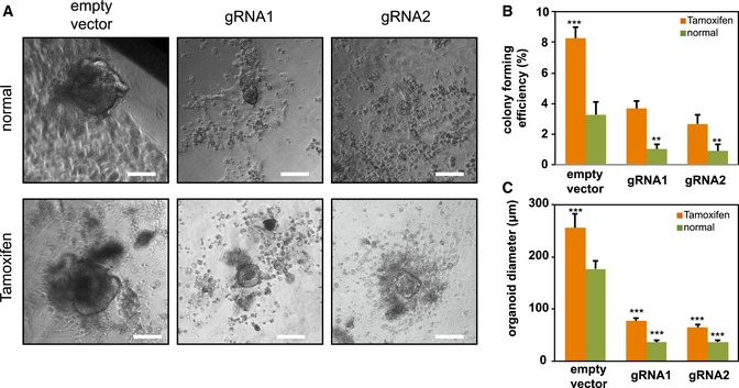 Notch activation in Notch1 positive feedback knock‐out intestine organoids Intestine cells extracted from LGR 5‐ EGFP × Cre ERT 2/Rosa26‐ YFP ‐ NICD mice were treated with tamoxifen to induce NICD overexpression ( NICD ‐ OE ) and subsequently transfected with either an empty vector (control) or CRISPR /Cas9 gRNA s. Shown are representative brightfield images over 3 weeks. Scale bar represents 100 μm. Colony‐forming efficiency ( n = 3) measured after 3 weeks. Quantitative analysis calculated from 1,000 cells/replicate. Quantitative comparison of organoid diameters ( n = 5) after 3 weeks. Data information: The experiment was performed in replicates and presented mean + SD (** P ≤ 0.01, *** P ≤ 0.001; Student's t ‐test compares other conditions to empty vector in normal condition separately).