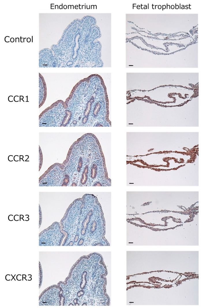 Localization of CCR1 (binds to CCL8, CCL14, and CCL16), CCR2 (binds to <t>CCL2,</t> CCL8, and CCL16), CCR3 (binds to CCL11), and CXCR3 (binds to CXCL10) in the bovine endometrium and fetal trophoblast obtained from cows in their 18th day of pregnancy. Intensive immunoreactivity was observed in endometrial epithelial cells, glandular epithelial cells, or fetal trophoblast. No positive immunoreactivity was observed in the negative control (Control). Scale bar = 50 µm.