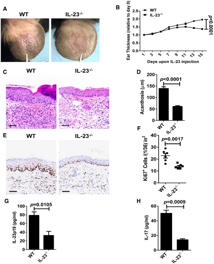 IL‐23‐induced psoriasis‐like skin disease is ameliorated in IL‐23 −/− mice Representative photographs of the ears of WT mice (left panel) and IL‐23 −/− mice (right panel) after intradermal injection with IL‐23 (500 ng) on every other day for 8 times, n = 6 per group. The ear thickness of WT and IL‐23 −/− mice on the indicated day presented relative to day 0. Significant differences are indicated: one‐way ANOVA, n = 6 per group (mean ± SEM). Representative H E staining of the ears treated as in (A), n = 6 per group. Scale bar: 50 μm. Acanthosis of WT and IL‐23 −/− mice treated with IL‐23. Significant differences are indicated: two‐tailed Student's t ‐test, n = 6 per group (mean ± SEM). Representative immunostaining of Ki67 in ear skin derived from WT and IL‐23 −/− mice treated with IL‐23 n = 6 per group. Scale bar: 50 μm. Quantitation of Ki67 + cells in ear skin derived from WT and IL‐23 −/− mice treated with IL‐23. Significant differences are indicated: two‐tailed Student's t ‐test, n = 6 per group (mean ± SEM). ELISA detection of IL‐23p19 (G) and IL‐17 (H) protein levels in supernatants of ear skin homogenates derived from indicated groups. Significant differences are indicated: two‐tailed Student's t ‐test, n = 3–5 per group (mean ± SEM).