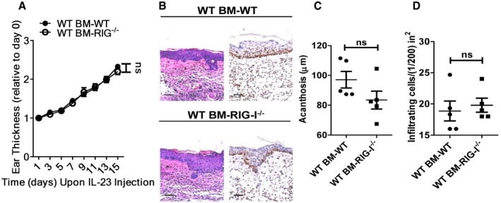 RIG‐I expression in non‐haematopoietic cells is not required for IL‐23‐induced psoriasis‐like skin inflammation Lethally irradiated WT and RIG‐I −/− mice were adoptively transferred with WT bone marrow (BM) cells, and the generated chimeric mice were subjected to IL‐23‐induced psoriasis‐like skin inflammation. Data are presented on the indicated day relative to day 0. Significant differences are indicated: one‐way ANOVA, n = 5 per group (mean ± SEM). Representative H E staining and Ki67 immunostaining of the ears treated as in (A), n = 5 per group. Scale bar: 50 μm. Acanthosis (C) and dermal cellular infiltrates (D) of WT BM‐WT or WT BM‐RIG‐I −/− mice treated with IL‐23. Significant differences are indicated: two‐tailed Student's t ‐test, n = 5 per group (mean ± SEM).