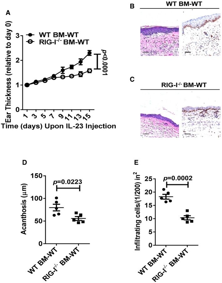RIG‐I expression in haematopoietic cells is critical for IL‐23‐induced psoriasis‐like skin inflammation Lethally irradiated WT mice were adoptively transferred with WT or RIG‐I −/− bone marrow cells, and the generated chimeric mice were subjected to IL‐23‐induced psoriasis‐like skin inflammation. Graph represents the ear thickness of WT recipient mice on the indicated day relative to day 0. Significant differences are indicated: P
