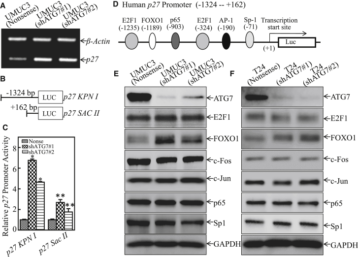 ATG7 Overexpression Inhibited p27 mRNA Transcription in Human BC Cells (A) UMUC3(shATG7#1), UMUC3(shATG7#2), and UMUC3(Nonsense) cells were cultured in 6-well plates until the cell density reached 70%–80%. Following synchronization for 12 hr, the medium was replaced with 10% FBS DMEM for another 12 hr. Then the cells were extracted for total RNA with TRIzol reagent. RT-PCR was used to determine p27 mRNA expression, whereas β-actin was used as an internal control. (B) Schematic representation of the p27 promoter region p27 KPNI and its deletion fragment SACII . (C) p27 promoter transcription activity was evaluated by using the two p27 promoter-driven luciferase reporters shown in (B). The results were normalized by internal TK activity, and the bars show mean ± SD from three independent experiments. The asterisk indicates a significant increase in comparison with vector control transfectant (*p