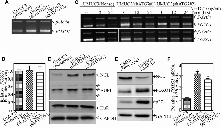 ATG7 Overexpression Decreased FOXO1 mRNA Stabilization by Regulating Its mRNA 3′ UTR Activity (A) UMUC3(shATG7#1), UMUC3(shATG7#2), and UMUC3(Nonsense) cells were cultured in 6-well plates until the cell density reached 70%–80%. Following synchronization for 12 hr, the medium was then replaced with 10% FBS DMEM for another 12 hr. Then the cells were extracted for total RNA with TRIzol reagent. RT-PCR was used to determine FOXO1 mRNA expression, and β-actin was used as an internal control. (B) The human FOXO1 promoter-driven luciferase reporter was used to evaluate its promoter transcription activity in the indicated transfectants. The results were normalized by internal TK activity. (C) UMUC3(shATG7#1), UMUC3(shATG7#2), and UMUC3(Nonsense) cells were seeded into 6-well plates. After synchronization, the indicated cells were treated with Act D for the indicated times. Total RNA was then isolated and subjected to RT-PCR analysis for mRNA levels of FOXO1 , and β-actin was used as an internal control. (D) The indicated cell extracts were subjected to western blot for determination of NCL, AUF1, and HuR protein expression. GAPDH was used as a protein loading control. (E) NCL knockdown constructs were stably transfected into UMUC3 cells. The knockdown efficiency of NCL protein and the expression of FOXO1 and p27 were evaluated by western blotting. GAPDH was used as a protein loading control. (F) The pMIR- FOXO1 3′ UTR mRNA reporter was transiently transfected into the indicated cells, and the luciferase activity of each transfectant was evaluated. The luciferase activity is presented as relative to nonsense transfectant, normalized by using pRL-TK as an internal control. The bars show mean ± SD from three independent experiments. The asterisk indicates a significant increase in UMUC3(shATG7) in comparison with nonsense transfectant (*p