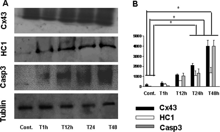 Western blot analysis of Cx43, HC1, and Casp3 expression in subventricular zone of rat's brain after HI insult. A, Protein expression of Cx43, HC1, Casp3, and tublin was identified from the tissue extracts in subventricular zone of rat's brain. B, Bar histograms show the mean ± SD corresponding to data displayed in part A. * P