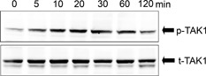 Activation of TAK1 by IL‐17F in ASMCs. The cells were incubated with IL‐17F (100 ng/mL) for different time points as indicated. Western blotting analysis was performed with Abs against total (t)‐TAK1 and phosphorylated (p)‐TAK1 as indicated. These results shown are representative of three separate experiments.
