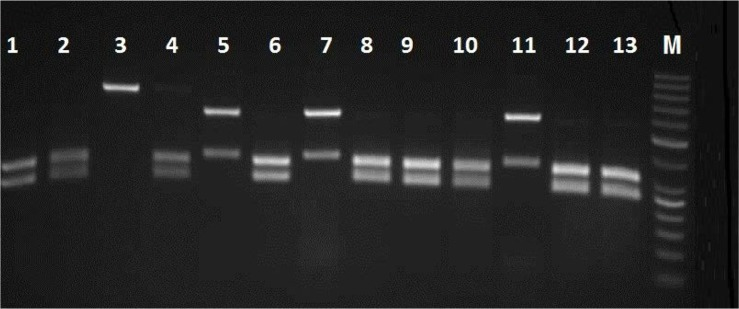 Agarose gel electrophoresis of ITS-rDNA RFLP profiles by Msp I for representative isolates of C. albicans, C. glabrata and C. kefyr Lanes 1, 2, 4, 6, 8, 9, 10, 12 and 13; clinical isolates of C. albicans , Lanes 5,7 and 11; C. glabrata and lane 3; C. kefyr , M; 50 bp DNA marker