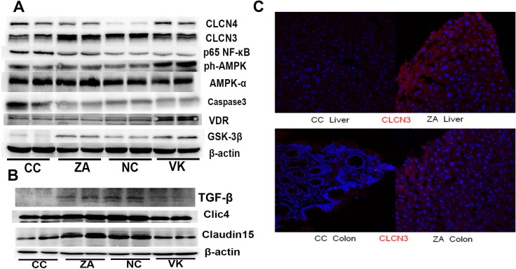 Liver and colonic expression of proteins involved in murine CRC ( A ) Immunoblot of hepatic CLCN3, CLCN4, NF-κB, AMPK, p-AMPK, VDR, GSK-3β and Caspase3 expression from NC, CC, ZA and VK mice. Equal amounts of protein extract 90 μg were loaded on each lane. ( B ) Immunoblot of colonic Claudin15, Clic4, TGF-β and β-actin from NC, CC, ZA and VK mice. ( C ) CLCN3 immunostaining in liver and colon tissues of representative CC and ZA mice. Immunostaining with anti-CLCN3 antibody (red), and 4′,6-diamidino-2-phenylindole (DAPI; blue) of fixed liver and colon sections.