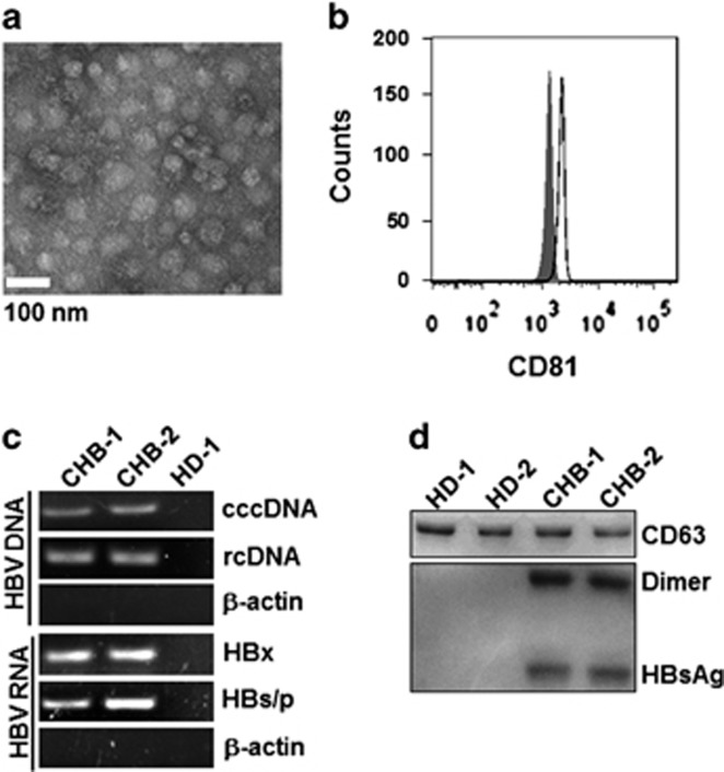 Exosomes derived from CHB patients contained viral components. ( a ) Electron microscope image of purified exosomes from CHB serum. Scale bar, 100 nm. ( b ) CD81 protein was used to identify the exosomes isolated from CHB serum using flow cytometry. The shaded histograms represent the isotype control. ( c ) HBV DNA (rcDNA and cccDNA) and RNA (HBx and HBs/p) in exosomes isolated from CHB serum were detected using PCR and RT-PCR, respectively. ( d ) Western blot analysis of HBsAg and CD63 in exosomes from HD and CHB patient serum (10 μg/well). (Because of the limited volume of each sample, six fresh serum samples from CHB patients or healthy donors were harvested and mixed for exosome isolation). One representative of at least three independent experiments is shown. CHB, chronic hepatitis B; HBV, hepatitis B virus; DNA, deoxyribonucleic acid; rcDNA, relaxed circular DNA; cccDNA, closed-circular DNA; RNA, ribonucleic acid; PCR, polymerase chain reaction; RT-PCR, reverse transcription polymerase chain reaction; HD, healthy donors.