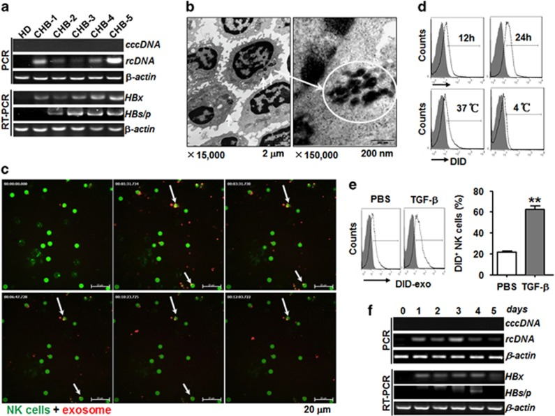 HBV can be transmitted into NK cells through exosomes. ( a ) Identification of HBV DNA (rcDNA and cccDNA) and HBV RNA (HBx and HBs/p) in NK cells isolated from HD and CHB patients. ( b ) Transmission electron microscopy of ultrathin sections was used to observe freshly isolated NK cells from CHB patients with high virus loading. Cytoplasmic inclusion bodies with irregular electron density are shown on the left and middle panels (arrows and loop). Scale bar, 2 μm and 200 nm. ( c ) Confocal images of the co-localization of CFSE-labeled (green) primary NK cells from HD incubated with DiD-labeled exosomes (red) for 3 h. Scale bar, 20 μm. ( d ) The uptake of DiD-labeled exosomes by primary NK cells after 12 or 24 h incubation at 37 or 4 °C was determined by flow cytometry. ( e ) TGF-β (5 ng/ml) enhanced the ability of primary NK cells to take up DiD-labeled exosomes (red). ( f ) Analysis of HBV DNA (rcDNA and cccDNA) and RNA (HBx and HBs/p) in primary NK cells from HD infected with exosomes derived from CHB serum for 0–5 days. The results are representative of at least three independent experiments. The data are expressed as the mean±s.e.m. * P