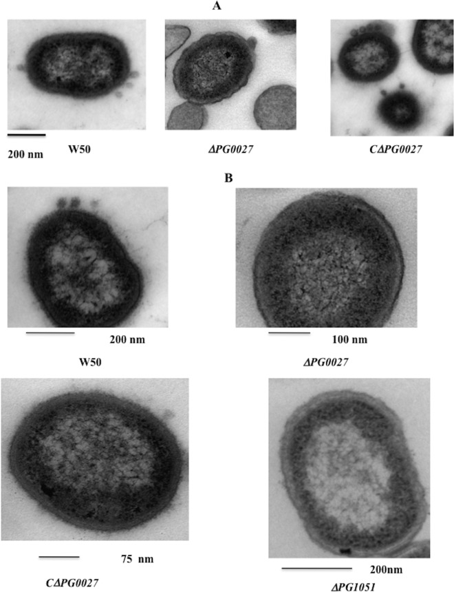 TEM of P. gingivalis W50, the Δ PG0027 and Δ PG1051 ( waaL ) mutant strains, and the C Δ PG0027 strain. Samples were prepared for TEM as described in Materials and Methods. (A) The scale bar represents 200 nm. OMV formation in P. gingivalis W50 and the C Δ PG0027 strain is clearly visible as defined structures. (B) Close-up view of the outer surface layers of P. gingivalis W50, the Δ PG0027 and Δ PG1051 ( waaL ) mutant strains, and the C Δ PG0027 strain.