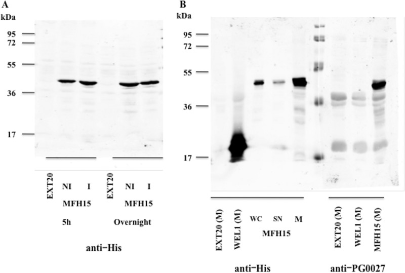 SDS-PAGE and Western blotting of proteins from E. coli DH5α cells containing pEXT20, pMFH15, and pWEL1 ( S . Typhimurium PagL cloned into pEXT20) versus anti-His and anti-PG0027 antibodies. (A) Proteins from EXT20 and MFH15 (NI, noninduced; I, induced) for 5 h or overnight were subjected to SDS-PAGE and Western blotting and probed with an anti-His antibody. (B) SDS-PAGE and Western blotting of membranes from EXT20 (M) and WEL1 (M) and samples from MFH15, namely, whole cells (WC), supernatants (SN), and membranes (M) probed with an anti-His antibody. Membranes from EXT20 (M), WEL1 (M), and MFH15 (M) were also probed with an anti-PG0027 antibody.