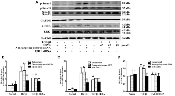 Effects of HSYA on TGF-β1/Smad and ERK/MAPK signaling pathway in TGF-β1-treated MRC-5 cells with TβRII knockdown. MRC-5 cells were pretreated with TβRII-non-targeting control siRNA or TβRII siRNA for 24 h followed by 45 μmol/L HSYA for 30 min before stimulation with 10 ng/mL TGF-β1 for 1 h. Protein levels of phosphorylated Smad2, Smad3, and ERK were analyzed by western blotting (A) . Densitometric analyses of phosphorylation statuses of Smad2 (B) , Smad3 (C) , and ERK (D) . Data are presented as mean ± SD, n = 3 per group. ΔΔ p