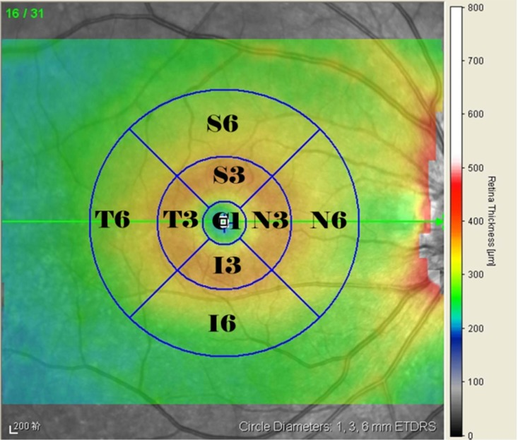 Representative Spectralis SD-OCT scans with macular thickness map (ETDRS grid). C1: the central fovea subfield/sector; S3, I3, T3, N3: superior, inferior, temporal, and nasal sectors, respectively, of the inner circle subfield between 1 and 3 mm; S6, I6, T6, N6: superior, inferior, temporal, and nasal sectors, respectively, of the outer circle subfield between 3 and 6 mm.