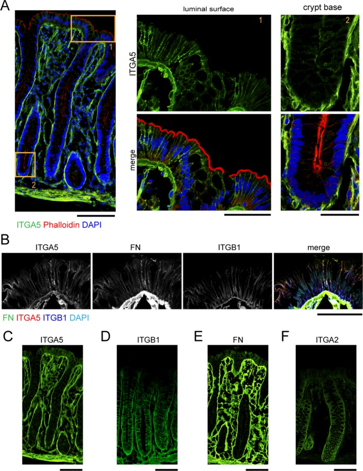 Integrin α5 is present at the lateral surface in the terminally differentiated compartment of the normal human colon. (A) Representative confocal images of a normal human colon section stained with antibody against integrin α5 (green), phalloidin (red), and DAPI (blue); scale bar, 100 μm. High-magnification view of differentiated (1) and progenitor (2) regions of crypt. Scale bar, 50 μm. (B) High magnification of epithelial cells at the luminal surface stained with antibodies against integrin α5 (red), fibronectin (green), integrin β1 (blue), and DAPI (teal). (C–F) Sections of normal human colon stained with antibodies against integrin α5 (C), integrin β1 (D), fibronectin (E), and integrin α2 (F). Scale bars, 50 μm.