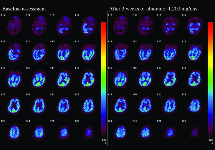 CBF images before and after ubiquinol supplementation at 1200 mg/day