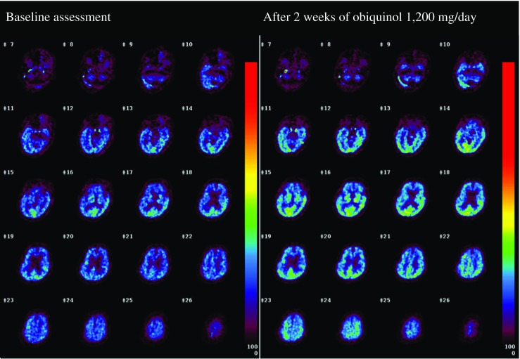 CMRO 2 images before and after ubiquinol supplementation at 1200 mg/day