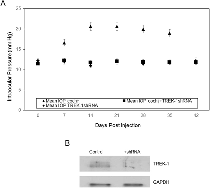 TREK-1 silencing inhibits cochlin overexpression increase in IOP. ( A ) Injection of cochlin-expression lentivirus (▲), cochlin-expressing lentivirus with TREK-1 shRNA (■), or TREK-1 shRNA alone (♦) into DBA/2J-Gpnmb+/SjJ mice TM. Analyses of variance (ANOVA) showed a statistically significant difference between the three groups. Scheffe's post hoc test showed that cochlin alone produced an increase in IOP that was statistically different from the maintenance of a lower IOP in cochlin + TREK-1 shRNA (n = 6; *p