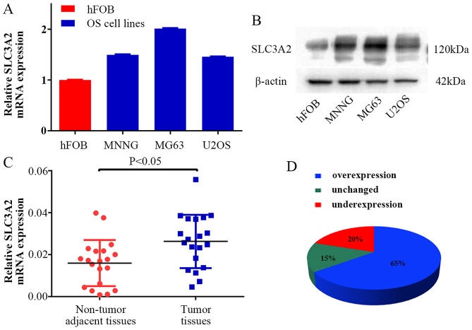 SLC3A2 expression is upregulated in OS clinical samples and cell lines. (A and B) The mRNA and protein expression levels of SLC3A2 were measured by TaqMan real-time PCR and western blot assays in OS cell lines (including MNNG/HOS, MG63 and U2OS) and a human osteoblastic cell line (hFOB). (C and D) Relative expression of SLC3A2 was detected using qRT-PCR in 20 pairs of OS samples and their corresponding non-cancerous samples. Statistical analysis was performed using paired t-test in C.