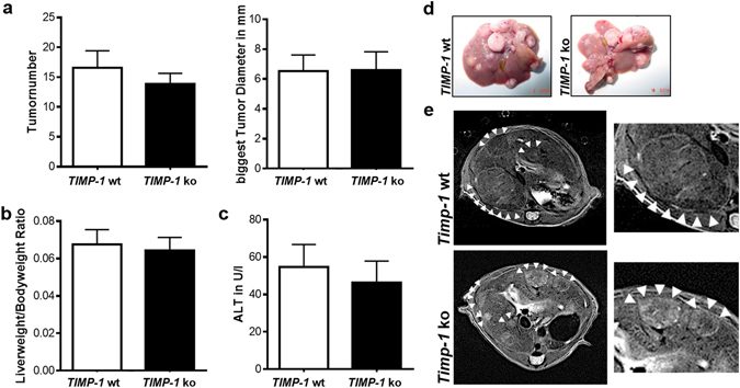 TIMP-1 deficient mice are not protected from hepatic carcinogenesis. Liver carcinogenesis was induced via juvenile DEN injection. ( a ) No differences between TIMP-1 wt and ko could be observed in tumor number or size. ( b ) TIMP-1 wt and ko show the same liverweight/bodyweight ratio. ( c ) ALT level were not induced following DEN treatment and did not differ between TIMP-1 wt and TIMP-1 ko. ( d ) Representative pictures of excised livers and ( e ) in vivo MRI images show equal tumor load of livers. Bar columns represent mean ± standard error of the mean. (n = 16–22).
