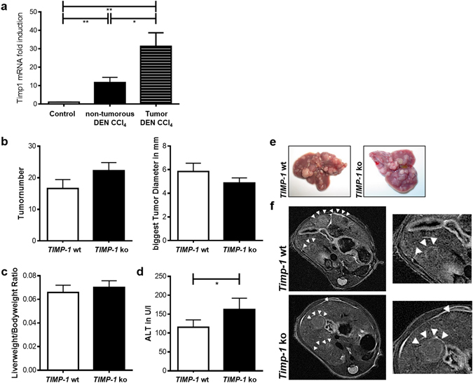 TIMP-1 deficient mice are not protected from fibrosis-driven hepatic carcinogenesis. ( a ) TIMP-1 expression increased in HCC tissue compared to adjacent paired normal tissue and control liver tissue following juvenile DEN administration and chronic CCl 4 injection. ( b ) Tumorload does not differ between TIMP-1 wt and ko as assessed by tumor number and size and ( e ) visualized by representative pictures of excised livers and ( f ) in vivo MRI images. ( c ) TIMP-1-deficiency does not alter the liverweight/bodyweight ratio. ( d ) A combination of juvenile DEN administration and chronic CCl 4 treatment led to overall increased ALT level, whereas elevated level could be measured in serum from TIMP-1 ko mice as compared with TIMP-1 wt. Bar columns represent mean ± standard error of the mean. **p