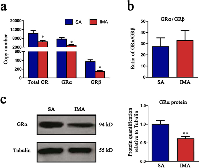 GR levels in IMA were lower than SA. Backfat and longissimus dorsi muscles were from 12 Erhualian sows, then the adipose tissues were collected for RNA and protein isolation. ( a ) Copy numbers of total GR, GRα, GRβ mRNA in SA and IMA tissues were detected by RT-qPCR. ( b ) The ratio of GRα/GRβ was displayed according to the result obtained in ( a ). Data are shown as the mean ± SEM, n = 12 per group, * P