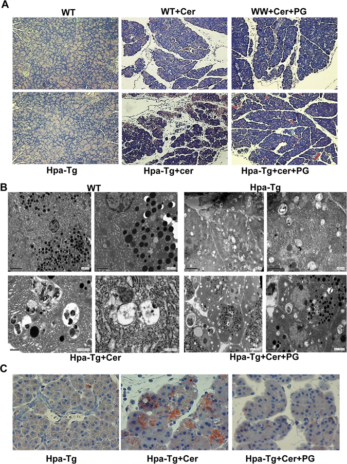 Histological analyses. ( A ) H E staining. WT and Hpa-Tg mice were injected with saline (left panels) or cerulein in the absence (middle panels) or presence (right panels) of PG545 pretreatment. Pancreas tissues were collected 24 h thereafter, and 5 micron sections from formalin-fixed, paraffin-embedded samples were stained for H E ( A ). Shown are representative photomicrographs at 10x original magnification. Corresponding pancreas tissues were processed for electron microscopy as described under 'Materials and Methods' ( B ). Note, increased autophagy in pancreatic acinar cells of Hpa-Tg vs. WT mice; Autophagy is further enhanced by cerulein, but restored by PG545 (cerulein+PG). Induction of AP resulted in dilatation of RER, mitochondrial swelling and large autophagosomes. Pancreatic tissue from mice treated with PG545 exhibited nearly normal ultrastructural appearance. Shown are representative micrographs at x8000, x10,000 and x12,500 original magnification. ( C ) LC-3 immunostaining. Hpa-Tg mice were injected with saline (left) or cerulein in the absence (middle) or presence (right) of PG545 pretreatment. Pancreas tissues were collected 24 h thereafter, and 5 micron sections from formalin-fixed, paraffin-embedded samples were stained for LC-3 (marker of autophagy). Shown are representative photomicrographs at original magnification of x40. Note that LC-3 staining resembles the patchy pattern of heparanase staining (Fig. 1D,E ).