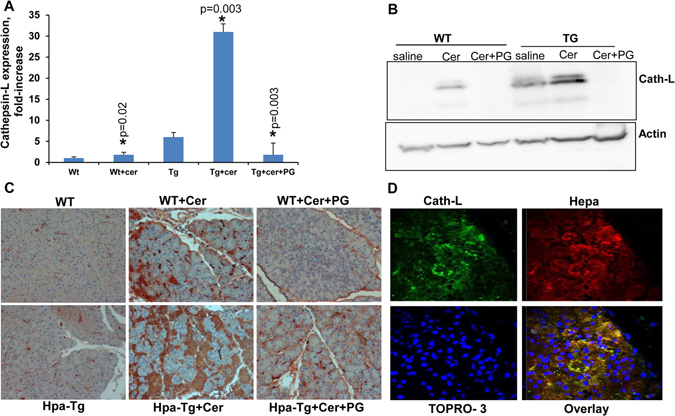Cerulein induces the expression of cathepsin-L in a heparanase-dependent manner. ( A ) Real-time PCR. WT and Hpa-Tg mice were injected with saline or cerulein in the absence or presence of PG545 pretreatment. Total RNA was extracted from pancreas tissues 24 hours thereafter and subjected to real-time PCR applying primers specific for cathepsin L. Relative gene expression (fold-increase) is shown graphically in relation to the levels in control pancreas set arbitrarily to a value of 1. ( B ) Immunoblotting. Proteins were extracted from corresponding pancreas tissues and lysate samples were subjected to immunoblotting applying anti-cathepsin L (upper panel) and anti-actin (lower panel) antibodies. ( C ) Immunostaining. Corresponding paraffin embedded pancreatic tissue sections were subjected to immunostaining applying anti- cathepsin-L antibody. Note a striking increase in cathepsin L expression by cerulein which is restored by the heparanase inhibitor PG545. ( D ) Colocalization of cathepsin L and heparanase. Paraffin embedded, pancreatic tissue sections of cerulein treated Hpa-Tg mice were subjected to double immunofluorescence staining using antibodies against cathepsin L (green) and heparanase (red). Merged image is shown together with nuclei counterstaining (blue). Co-localization appears in yellow. Shown are representative photomicrographs at original magnification x40.