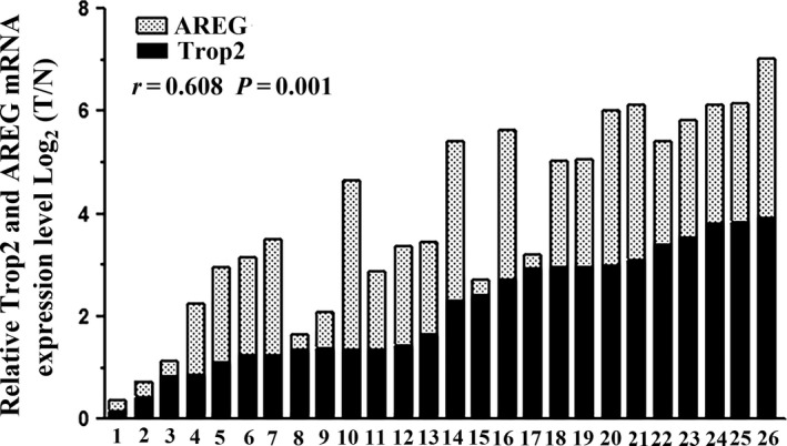 Trop2 and AREG mRNA expression in 26 pairs GC tissue pairs. Trop2 and AREG mRNA expression was examined by qRT ‐ PCR and normalized to β ‐actin. T=GC tissues; N=matched tumor neighbor tissues.