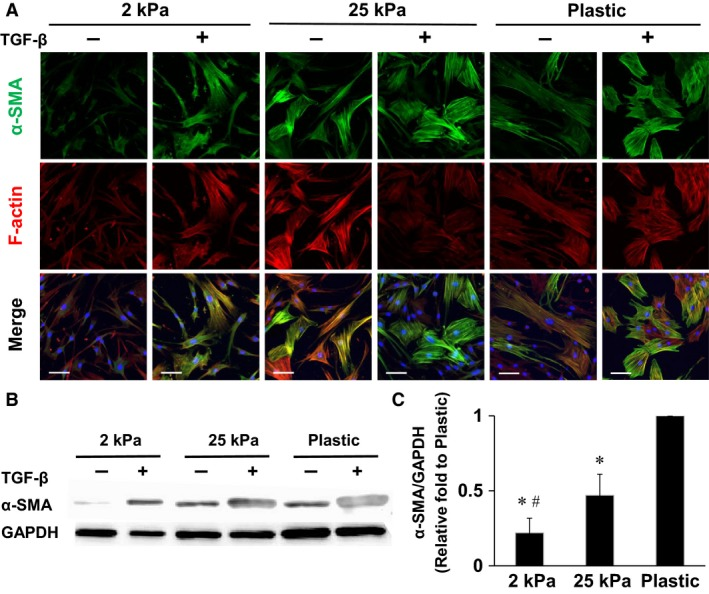 Substrate stiffness regulates expression of α ‐ SMA and F‐actin. (A) Representative immunofluorescence images of lung fibroblasts cultured on increasing substrate stiffnesses with or without TGF ‐ β 1 (10 ng/mL) for 4 days, stained for α ‐ SMA (green), F‐actin (red), and nuclei (blue). Images were obtained using a confocal microscopy with a 25× objective. (B) Effects of substrate stiffness and TGF ‐ β 1 (10 ng/mL) on expression of α ‐ SMA proteins as assessed by Western blotting. (C) α ‐ SMA protein/ GAPDH protein ratios on different substrates without TGF ‐ β 1 treatment were compared ( n = 5). The α ‐ SMA / GAPDH ratio of the cells cultured on plastic dishes was defined as 1. Values are means ± SD . * P