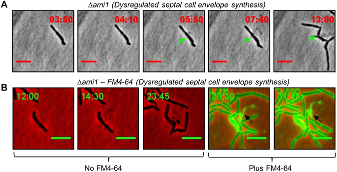 ( A ) Time-lapse microscopic analysis of septal cell wall release in the Δ ami1 mutant strain. Cells were grown and imaged in Middlebrook 7H9 media. ( A ) Shown is the growth of the Δ ami1 strain with release of material from the septum (green arrow) suggestive of dysregulated septal envelope synthesis. ( B ) Depicts growth of the Δ ami1 strain in the presence of FM4-64 (last two frames), the black arrows highlight positive FM4-64 staining of the cell envelope material released from mid-cell. Scale = 5 µm. Time frame is in hours.