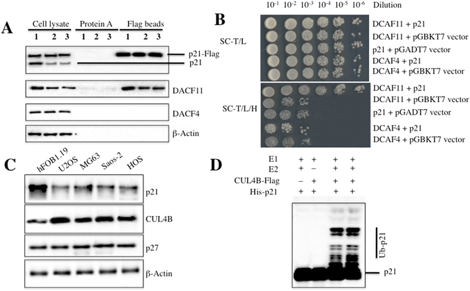 p21 is a target of CRL4B DCAF11 E3 ligase in human osteosarcoma cells. ( A ) Flag-tagged p21 associated with DCAF11 in vivo . The pCDNA3-p21-Flag plasmid was transformed into hFOB1.19 (1), U2OS (2) or Saos-2 (3) cells. After 48 h incubation, Flag-tagged proteins were immunoprecipitated with either protein A agarose or anti-Flag-agarose. The cell lysate and pull-down products were analysed by immunoblotting with anti-p21, anti-DCAF1, anti-DCAF4, anti-DCAF11 or β-Actin antibodies. ( B ) p21 interacted with DCAF11 in yeast. The pGBKT7-p21 plasmid was co-transformed with pGADT7-DCAF11 or pGADT7-DCAF4 into the yeast strain AH109. Growth of the transformed yeast was assayed on media lacking Trp and Leu (top panel) or lacking Trp, Leu, and His (bottom panel). Columns in each panel represent serial 10-fold dilutions. ( C ) p21 was significantly down-regulated in human osteosarcoma cell lines. Cell lysates were applied to WB analyses with specific antibodies against p21, CUL4B, p27, or β-Actin. ( D ) p21 was ubiquitinated by CRL4B DCAF11 E3 ligase in vitro . The purified His-p21 protein was incubated with E1, with or without E2, and with or without CUL4B-Flag in reaction buffer, followed by immunoblotting for p21.