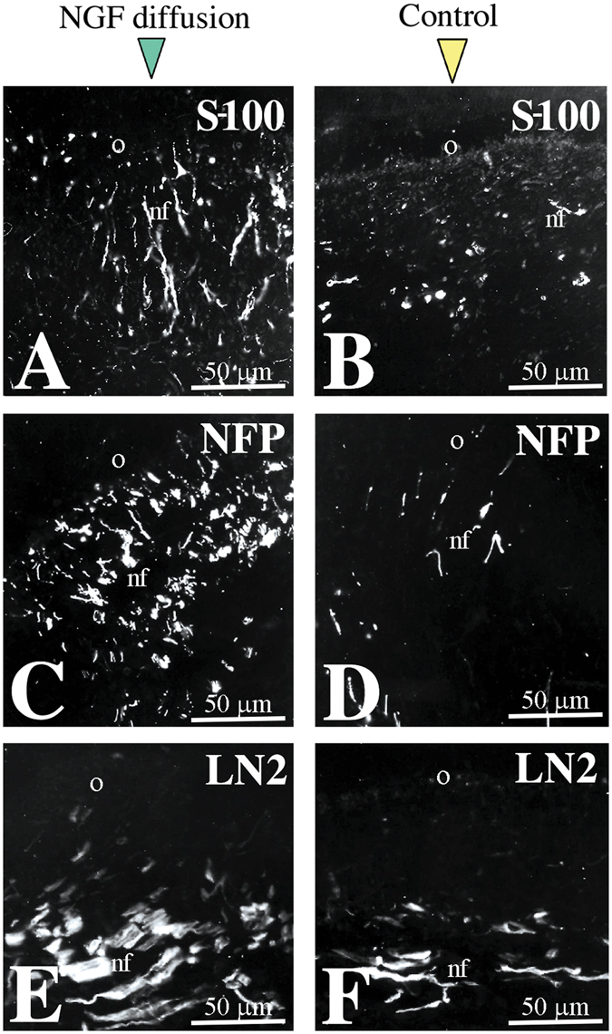 NGF administration induces growth of axons and migration of glial cells. ( A , B ) S-100 staining marking glial cells in NGF-treated ( A ) and control ( B ) pulps. ( C , D ) Neurofilament (NFP) staining marking axons in NGF-treated ( C ) and control ( D ) pulps. ( E , F ) Laminin-α2 (LN2) expression in NGF-treated ( E ) and control ( F ) pulps. Abbreviations: nf, nerve fibres; o, odontoblasts.