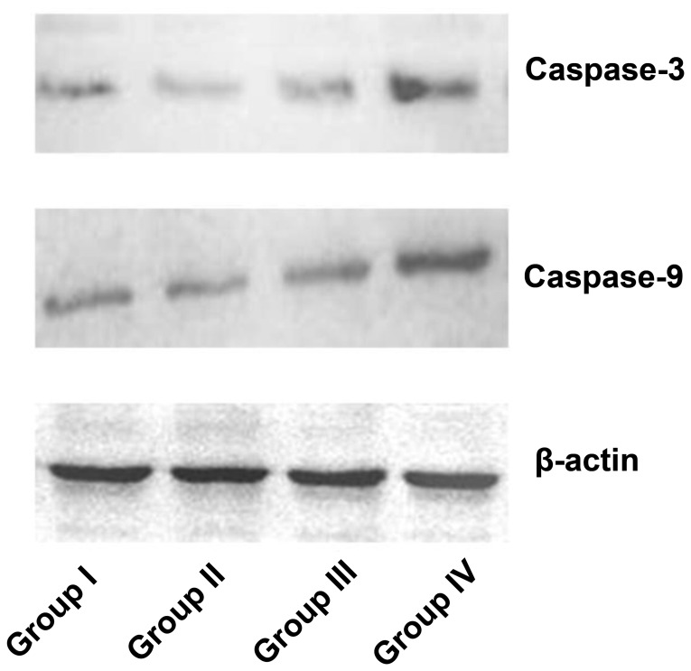 Protein levels of caspase-3 and caspase-9 in group I (without AE and illumination), group II (10 µM AE), group III (illumination, 12.8 J/cm 2 ) and group IV (photodynamic therapy), as determined by western blot. AE, aloe-emodin.