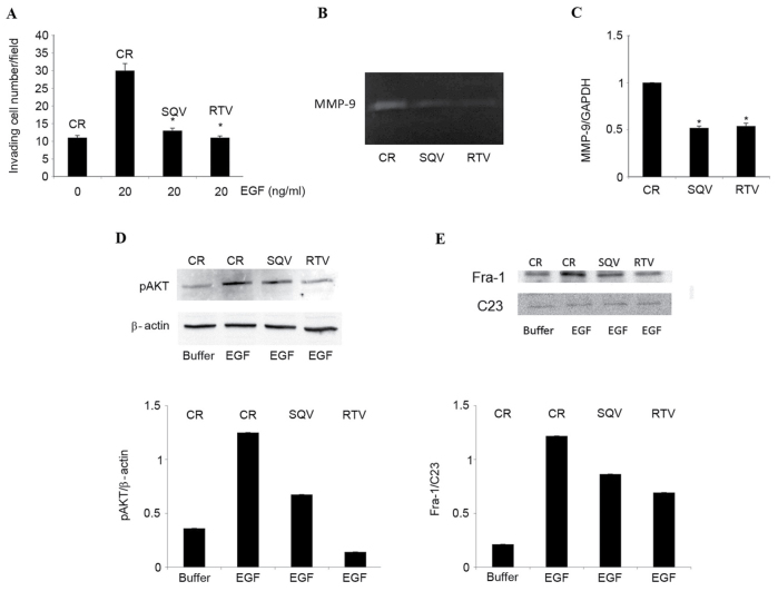 SQV and RTV counteract EGF-induced cell invasion, MMP-9 expression, AKT phosphorylation and nuclear Fra-1 protein expression in W12 cells. W12 cells were cultured for 96 h in the presence of 10 µM SQV or RTV, or in their absence (control). (A) Cells were stimulated to invade a reconstituted basement membrane in response to 20 ng/ml human recombinant EGF, or to its suspension buffer (0.1% bovine serum albumin in phosphate-buffered saline, indicated here as EGF 0 ng/ml). Results are expressed as the mean ± standard deviation from 3 experiments, each performed in duplicate chambers. (B) Representative zymography of EGF-supplemented, serum-free supernatants. The de-stained areas indicate gelatinolytic activity corresponding to MMP-9 (92 kDa) released by the cells. (C) Reverse transcription-quantitative polymerase chain reaction analysis of MMP-9 messenger RNA levels (relative to GADPH) in cells cultured in EGF-supplemented growth medium, in the absence or presence of 10 µM SQV/RTV. Results are expressed as the mean ± standard deviation from 3 experiments. (D) Representative western blot analysis and quantification by densitometry of pAKT protein levels (relative to β-actin) in W12 cells lysed following a 30-min exposure to EGF. (E) Representative western blot analysis and quantification by densitometry of nuclear Fra-1 protein levels (relative to C23) in W12 cells lysed following a 6-h exposure to EGF. *P