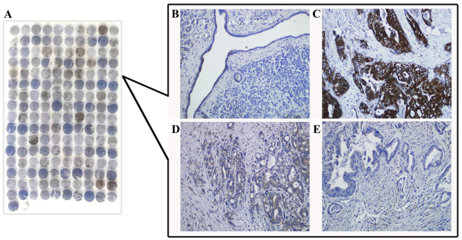 Immunohistochemical staining of NQO1 protein expression in PDAC tissues. (A) NQO1 protein expression was evaluated in microarray of PDAC tissues. (B) NQO1 staining demonstrated negative expression in non-tumor tissues. (C) Strongly positive expression of NQO1 protein in PDAC with metastasis. (D) NQO1 protein was weakly positive expressed in PDAC. (E) NQO1 protein was negatively expressed in PDAC (Original magnification, ×200 in B-E). NQO1, nicotinamide adenine dinucleotide phosphate:quinone oxidoreductase 1; PDAC, pancreatic ductal adenocarcinoma.
