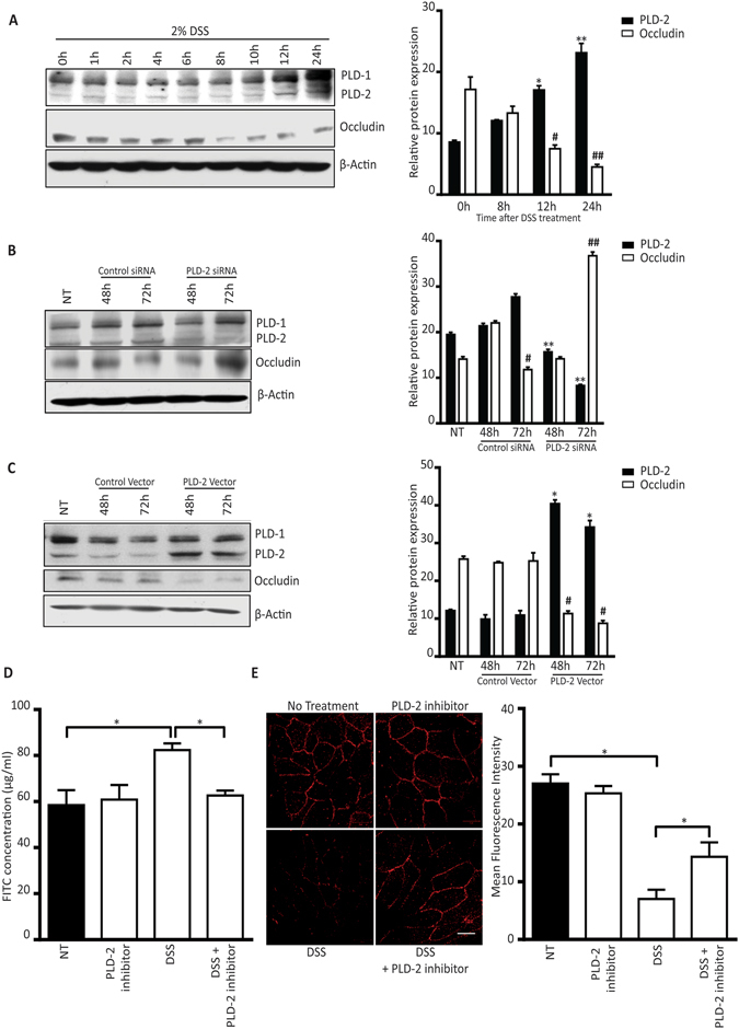 PLD2 is involved in DSS-induced downregulation of occludin. ( A ) Western blots showing the effect of DSS treatment on the level of PLD2 in HT-29 colon epithelial cells at the indicated time points. Quantitative data showing the relative PLD2 and occludin expression at 8, 12, and 24 hours. ( B ) Effects of siRNA-mediated PLD2 knockdown in HT-29 colon epithelial cells ( C ) HT-29 colon epithelial cells were transfected with control, or PLD2 vector and PLD2, and occludin expression was analysed at 48 and 72 hours. Graph showing relative protein expression. Panel A–C: PLD2 expression of untreated (NT) vs. the indicated time point, or specified treatment group (*p