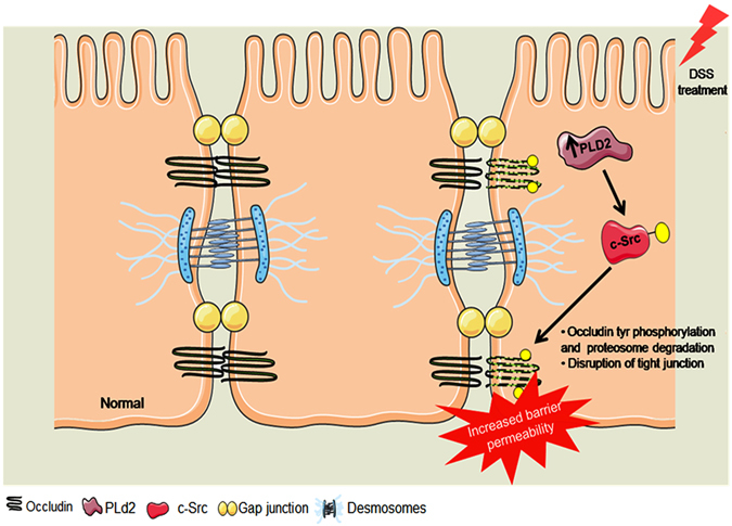 Mechanism of epithelial barrier integrity regulation by PLD2. DSS treatment upregulates the expression of PLD2 in colon epithelial cells, which activates c-SRC. c-SRC is a tyrosine kinase that interacts with the tight junction protein occludin. Activated c-Src phosphorylates occludin at the tyrosine residues and targets it for proteasome-mediated degradation. Dissociation of occludin from the membrane causes an increase in barrier permeability, which leads to increased inflammation. Graphical illustration was drawn using the images from Servier Medical Art by Servier with slight modifications ( http://www.servier.com/Powerpoint-image-bank , https://creativecommons.org/licenses/by/3.0/ ).
