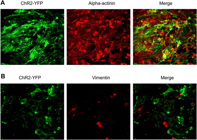 Characterization of lentivirus transduction-induced ChR2 expression in cardiomyocytes and fibroblasts. ( A ) NRVM culture stained with anti-sarcomeric alpha-actinin antibody; and ( B ) NRVM culture stained with anti-vimentin antibody. n = 4 per group.
