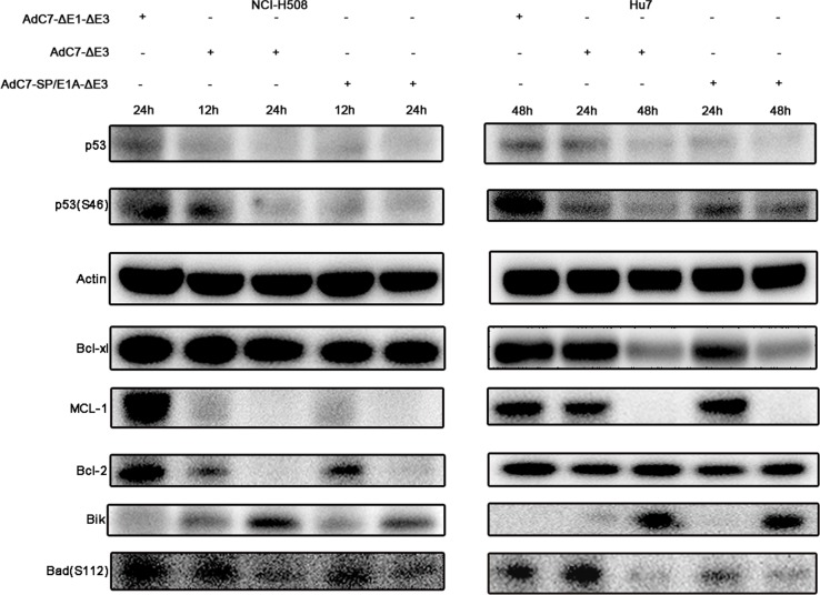 Tumor cell apoptosis is induced by AdC7-SP/E1A-ΔE3 via a <t>p53-independent</t> mitochondrial pathway NCI-H508 and Huh7 cells were infected at 100 MOI with AdC7-ΔE1-ΔE3, AdC7-ΔE3, and AdC7-SP/E1A-ΔE3. NCI-H508 cells were collected at 12 h and 24 h post infection, and Huh7 cells were collected 24 h and 48 h post-infection. Western blotting was carried out to detect levels of p53, phosphorylation of p53, MCL-1, Bcl-2, Bcl-xl, <t>Bik</t> and phosphorylation of Bad in NCI-H508 and Huh7 cells. β-actin was used as a loading control.
