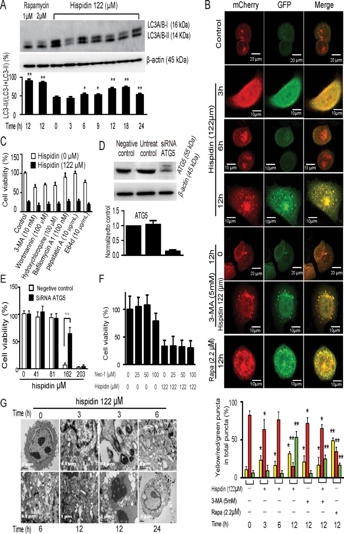 Hispidin induces necrotic cell death involving autophagy in SGC-7901 cells ( A ) SGC-7901 cells were treated with hispidin or rapamycin. Then, LC3-I and LC3-II were detected by Western blotting using β-actin as an internal control. ( B ) SGC-7901 cells were transiently transfected with mCherry-GFP-LC3B and treated with hispidin, 3-MA, or rapamycin containing medium. The colocalization of GFP and mCherry signals was analyzed. Quantitation represents the number of autophagosomes and autolysosomes per cell ( n = 20). ( C ) After preincubation with either 10 mM 3-Methyladenine (3-MA), 100 nM wortmannin, 100 μM hydroxychloroquine, 100 nM bafilomycin A1, 10 μg/mL pepstatin A or 10 μg/mL E64d SGC-7901 cells were treated with 122 μM hispidin and assayed for cell viability. ( D and E ) SGC-7901 cells were transfected with scrambled RNA and ATG5 RNA for 48 h, and ATG levels were determined by Western blot; cell viability was assayed using MTT. ( F ) SGC-7901 cells were preincubated in the presence or absence of 25, 50 or 100 nM necrostatin-1 for 2 h before being treated with 122 μM hispidin. Then, the cells were examined for viability. ( G ) Transmission electron microscopy of SGC-7901 cells. Cells were treated with 122 μM hispidin.