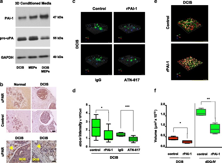 Analysis and targeting of the plasminogen activation pathway results in decreased extracellular matrix (ECM) degradation by ductal carcinoma in situ (DCIS) structures formed in mammary architecture and microenvironment engineering (MAME) cultures. a Media conditioned from 8-day 3D cultures of myoepithelial cells (MEPs) alone, DCIS cells alone, and DCIS-MEP cocultures were analyzed by immunoblotting for plasminogen activator inhibitor 1 (PAI-1) and pro-urokinase plasminogen activator (pro-uPA). Immunoblotting for glyceraldehyde 3-phosphate dehydrogenase (GAPDH) in cell lysates was used as a loading control. b Representative images from a tissue microarray containing adjacent normal and DCIS specimens were stained for human urokinase plasminogen activator receptor (uPAR) with ATN-617 antibody (5 μg/ml) ( top rows ) and preimmune immunoglobulin G (IgG) (control). Scale bar = 100 μm ( middle rows ). In DCIS specimens imaged at a higher magnification, stromal cells ( arrows ) can be seen to exhibit strong staining for uPAR. Scale bar = 50 μm ( bottom rows ). All sections were counterstained with hematoxylin. c MCF10.DCIS (DCIS) cells were seeded in reconstituted basement membrane (rBM) overlay cultures containing dye-quenched collagen IV (DQ-collagen IV) in the absence (control) or presence of 250 nM human recombinant plasminogen activator inhibitor 1 (rPAI-1), preimmune IgG (IgG), or 10 μg/ml uPAR blocking antibody (ATN-617) and imaged live at day 4. Representative angled views of 3D reconstructions of DCIS structures illustrate nuclei ( blue ) and DQ-collagen IV degradation products (dDQ-IV, green ). One grid unit = 45 μm. d Intensity of dDQ-IV per cell was quantified from a minimum of three independent experiments using Volocity software ( n = 8–14). * p ≤ 0.05 and *** p ≤ 0.0005 as determined by unpaired t test, two-sided. MCF10.DCIS-lenti-RFP cells (DCIS, red ) were seeded into rBM overlay cultures containing DQ-collagen IV in the absence (control) or presence of rPAI-1 and imaged live at day 4. e Representative angled views of 3D reconstructions of DCIS ( red ) structures and associated dDQ-IV ( green ). One grid unit = 180 μm. f Volumes of DCIS structures ( red ) and dDQ-IV ( green ) in the absence (control) and presence of rPAI-1 were quantified from a minimum of three independent experiments using Volocity software ( n = 4). * p ≤ 0.05 and ** p ≤ 0.005 as determined by unpaired t test, two-sided. Data are presented as box-and-whisker plots where the box represents the interquartile range and whiskers represent minimum and maximum values. Images are representative of at least three independent experiments. Additional results are shown in Additional file 11 : Table S1, Additional file 12 : Table S2, and Additional file 13 : Table S3
