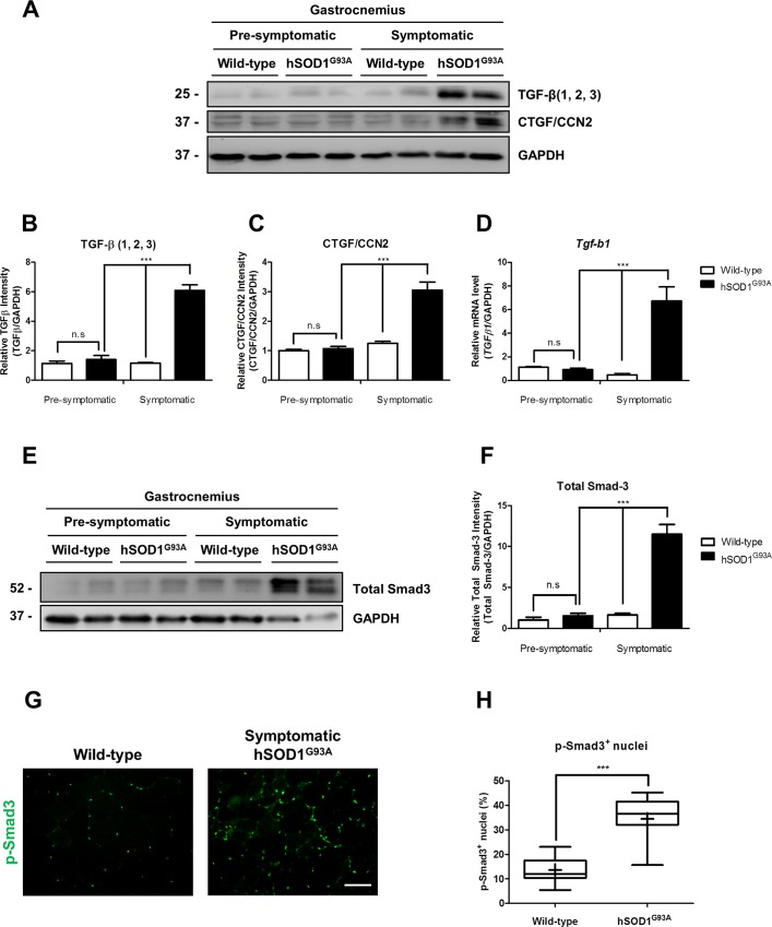 TGF-β signaling pathway is induced in gastrocnemius muscle from symptomatic hSOD1 G93A mice. (A) TGF-β (1, 2, 3), CTGF/CCN2 was detected by western-blot in protein extracts under non-reducing condition from wild-type (60 days old), pre-symptomatic (60 days old) hSOD1 G93A age-matched mice, wild-type (120 days old) and symptomatic (120 days old) hSOD1 G93A age-matched mice. GAPDH protein levels are shown as loading control. (B-C) Protein levels of TGF-β (1, 2, 3) and CTGF/CCN2 were quantified using densitometric analysis. Values correspond to the mean ± SEM of four animals for each experimental condition. One-way ANOVA, *** p