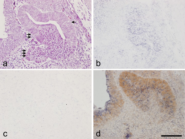 In situ hybridization of Notch2 and immunohistochemistry of SOX2 in a sagittal section of rat pituitary gland at embryonic day 14.5. a ) Hematoxylin and eosin staining. b ) In situ hybridization of Notch2 . c ) Negative control of in situ hybridization using a sense probe of Notch2 . d ) Double staining of Notch2 detected by in situ hybridization and SOX2 detected by immunohistochemistry. Immunoreactivity for SOX2 was revealed by <t>3,3'-diaminobenzidine</t> (brown) and the Notch2 in situ hybridization signal with nitro blue tetrazolium/5-bromo-4-chloro-3-indolyl phosphate (blue). Arrow: prospective pars intermedia , Double arrow: prospective pars distalis , Triple arrow: prospective pars tuberalis . Bar = 100 μm.