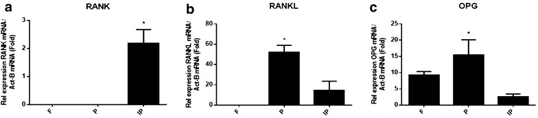 TaqMan analysis of bone resorption molecules: RANK, RANKL and OPG expression in calvariae of C57BL/KalwRiJHsD mice. RNA was extracted with cDNA synthesized from frontal (F), parietal (P) and interparietal (IP) bones. The relative expression of osteoclast marker genes was adjusted to the relative expression of a housekeeping gene, β-actin. Data show that the RANK gene was only expressed in interparietal bone, while it was not expressed in frontal or parietal bones. Additionally, there was a significant increase in the relative expression of the RANK gene ( a ) in interparietal bone compared to frontal and parietal bones. On the other hand, there was a significant increase in the relative expression of the RANKL ( b ) and OPG ( c ) genes in parietal bone compared to frontal and interparietal bones