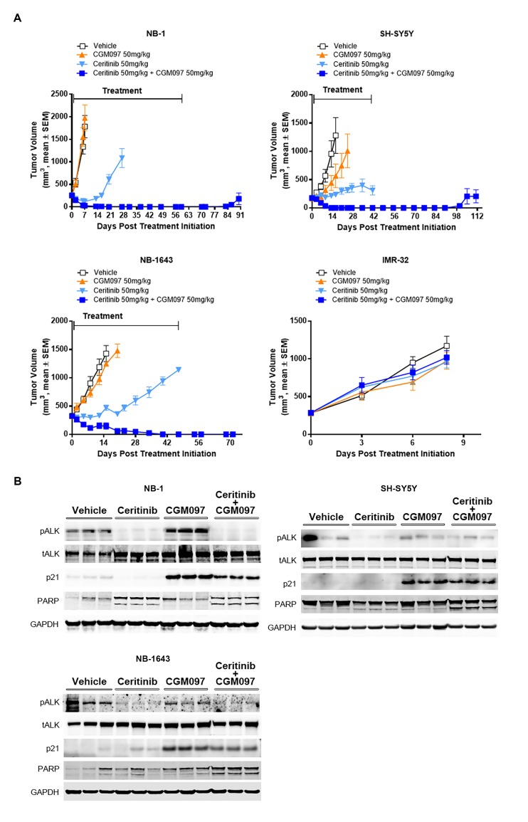 Combination of ceritinib with CGM097 leads to increased antitumor activity in TP53 wild-type neuroblastoma xenograft tumors harboring ALK aberrations. ( A ) The improved in vivo efficacy in the NB-1, SH-SY5Y and NB-1643 xenograft mouse models that harbor wild-type TP53 and ALK aberrations when ceritinib was combined with CGM097 and lack of antitumor activity of this combination in the IMR-32 xenograft tumors that harbor wild-type TP53 and ALK . The neuroblastoma cell lines NB-1, SH-SY5Y and IMR-32 were implanted into the flanks of nude mice and NB-1643 in SCID mice. Animals were randomized into four groups when the average tumor volume was 200–300 mm 3 and received vehicle, ceritinib (50 mg/kg), CGM097 (50 mg/kg) or both inhibitors in combination. Combination of ceritinib with CGM097 was withdrawn on day 60 and day 45 for NB-1 and SH-SY5Y, respectively, to allow tumor regrowth. Tumor dimensions and body weights were measured at the time of randomization and twice weekly thereafter for the study duration. Average tumor volume and SEM are shown as a function of time. ( B ) Inhibition of phospho-ALK, induction of p21 and increased levels of cleaved PARP in NB-1, SH-SY5Y and NB-1643 xenograft tissues treated with ceritinib in combination with CGM097. Animals were treated with vehicle, ceritinib (50 mg/kg), CGM097 (50 mg/kg) or both inhibitors in combination for 3 days. Tumor tissues were recovered 4 hr after the last dose treatment and analyzed by Western blotting. DOI: http://dx.doi.org/10.7554/eLife.17137.005 10.7554/eLife.17137.006 Details of human neuroblastoma cell line xenograft studies. DOI: http://dx.doi.org/10.7554/eLife.17137.006