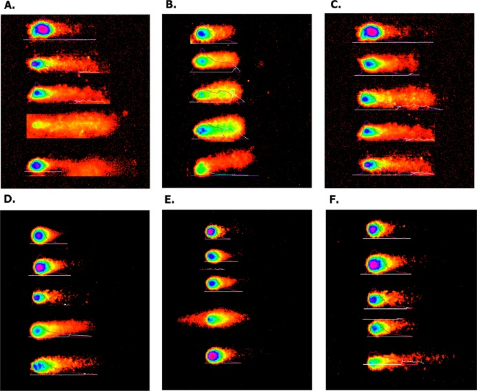"""Overexpressed hsa-miR-138-2-3p promoted DNA damage after radiation by Comet assay. (A) and (D) show the DNA damage analysis of 100nM-TR and 100nMN-CR of Hep-2 cell line after radiation, respectively; (B) and (E) show the DNA damage analysis of 100nM-TR and 100nMN-CR of M2e cell line after radiation, respectively; (C) and (F) show the DNA damage analysis of 100nM-TR and 100nMN-CR of TU212 cell line after radiation, respectively. The appearance of """"comet"""" with fragmented DNA (tail) being separated from undamaged nuclear DNA (head) was seen in 100nM-TR and 100nMN-CR of Hep-2, M2e, and TU212 CSCs after radiation. It was found that the """"heads"""" of """"comet"""" of 100nM-TR were smaller than that of 100nMN-CR, while the """"tails"""" of """"comet"""" of 100nM-TR were longer than that of 100nMN-CR. These data were indicated that the DNA damage of 100nM-TR were more serious than that of 100nM-CR in laryngeal CSCs after radiation."""