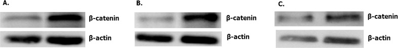 Overexpressed hsa-miR-138-2-3p down-regulated expression of β -catenin. The expression of β -catenin in 100nM-TR of Hep-2 (A), M2e (B) and TU212 (C) CSCs were reduced more than that in 100nMN-CR.